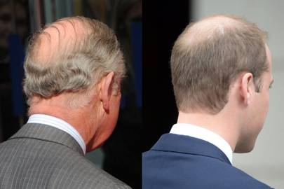 Losing hair, they don't care
